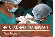 Cure for Baldness and Hair Loss Treatment by the Surgical Techniques | Hair Transplants, Hairloss Treatment and Cure for Baldness In Delhi India | Scoop.it