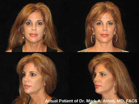 When is the Right Time for a Facelift?   Plastic Surgery & Skin Care   Scoop.it