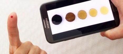 Un grupo de investigadores españoles consigue medir la anemia desde el móvil | celulares | Scoop.it