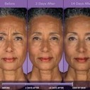 Is Angry Face Syndrome Sabotaging Your Looks?   Botox Tips from the Experts in Marietta   Scoop.it