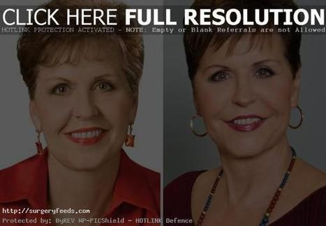 Joyce Meyer Plastic Surgery Before and After Pictures | Plastic Surgery Before and After Photos | Scoop.it