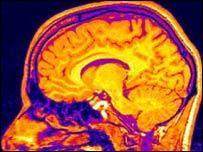 La neurociencias esta cambiando el paradigma educativo | (E)-Learning & Development | Scoop.it