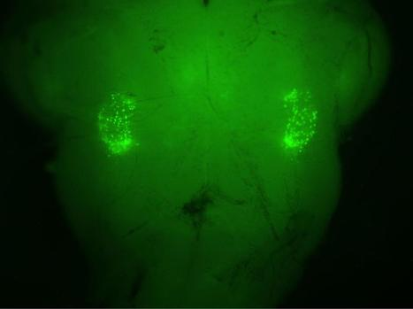 UCLA-Stanford researchers pinpoint origin of sighing reflex in the brain | Fragments of Science | Scoop.it