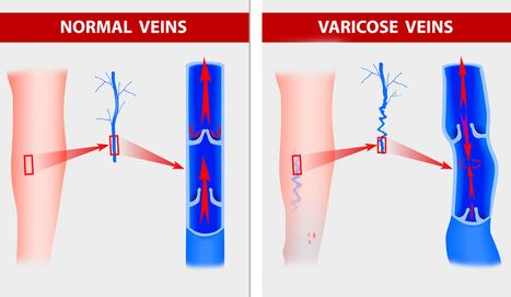 Peter | VeinsTreatment.com | circulatory system health | Scoop.it