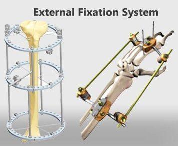 Advantages of External Fixation | Orthopedic Implants | Orthopaedic Surgical Instruments | Orthopedic Plates & Screws | Scoop.it