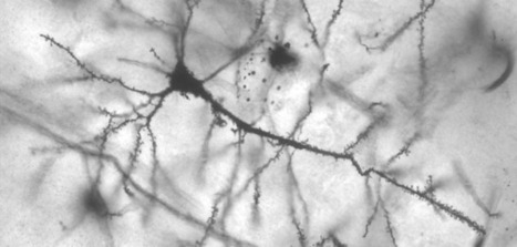 Glitch in brain's garbage removal enhances risk of neurodegenerative diseases   Social Neuroscience Advances   Scoop.it