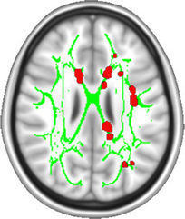 NIH-funded study suggests brain is hard-wired for chronic pain : National Institute of Neurological Disorders and Stroke (NINDS) | Conquer Chronic Pain | Scoop.it