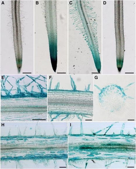 A Laser Dissection-RNAseq Analysis Highlights the Activation of Cytokinin Pathways by Nod Factors in the Medicago truncatula Root Epidermis | Plant-Microbe Symbiosis | Scoop.it
