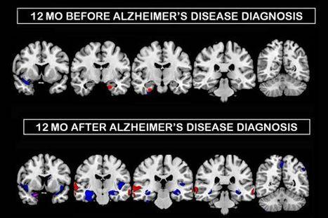 Alzheimer: des dégâts plus précoces chez les femmes | PsyMag | Scoop.it