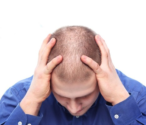 Effective Hair Loss Solution: Factors that Affect Hair Transplant Cost | BajaHairCenter | Scoop.it