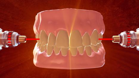 Metal Fillings No More: Lasers Used to Rebuild Teeth - NBC News | Health & Science | Scoop.it