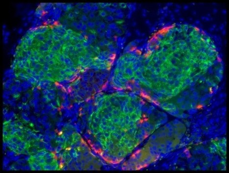 Harvard scientist creates functional insulin-producing human beta cells | Amazing Science | Scoop.it