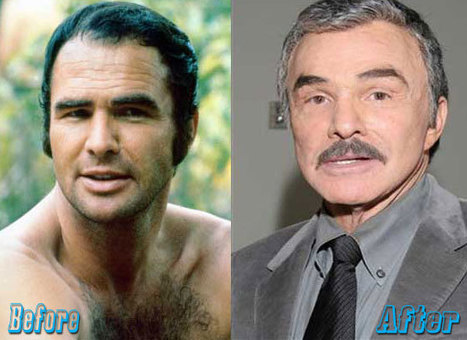 Burt Plastic Surgery Before and After | Celebrity Plastic Surgery News | Scoop.it