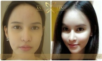 Facelift Surgery | Rhytidectomy - Asia Cosmetic Hospital Thailand | Facelift Thailand | Scoop.it