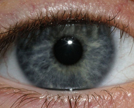 New Procedure Would Turn Your Brown Eyes Blue : Discovery News   MrsWunder's Blog   Scoop.it