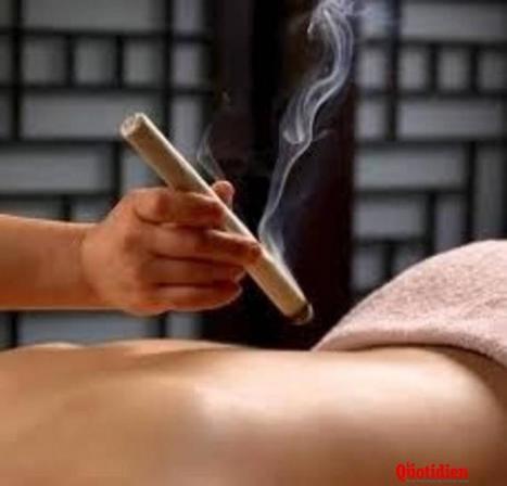 La moxibustion de la médecine traditionnelle chinoise - lequotidien.re | Médecines Traditionnelles et culturelles | Scoop.it