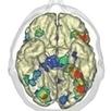 CEA<br/>                                     - Recherche fondamentale - Impact de l&rsquo;apprentissage de la lecture sur le cerveau | E-learning : actualit&eacute; et perspectives | Scoop.it