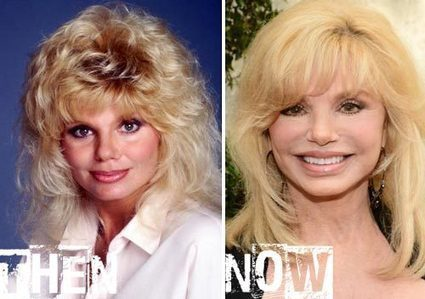 Loni Anderson Plastic Surgery Before & After Photos | Celebrity Plastic Surgery | Scoop.it