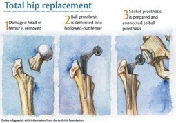 Standard Hip Replacement Surgery In Indi   Best Hospital for Heart Treatment in Chennai   Scoop.it