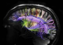 Spectacular brain images reveal surprisingly simple structure | behavioural psychology | Scoop.it