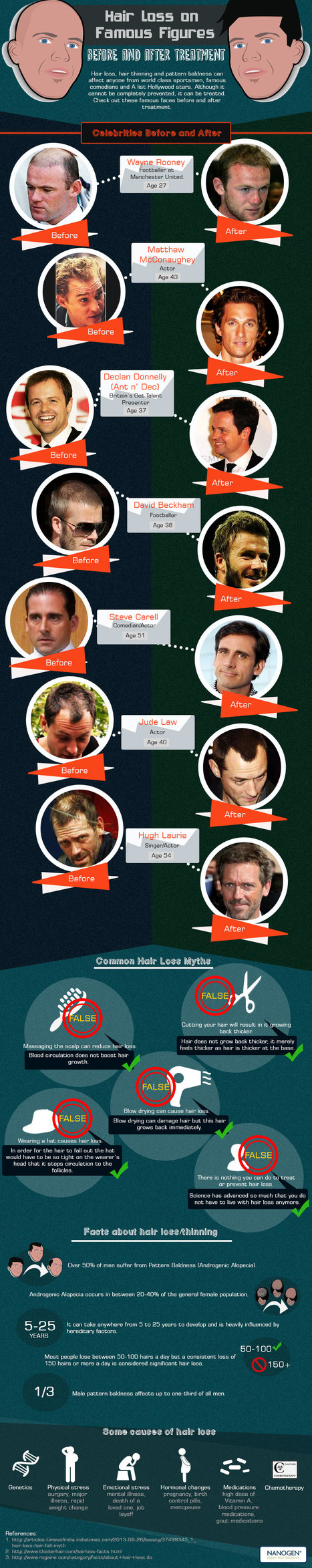 Introduction for Nanogen Info-graphic | Celebrity Hair Treatments: Before and After | Scoop.it