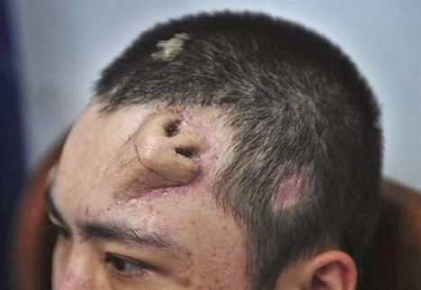 Chinese Man Draws Worldwide Attention after Growing a Nose on Forehead - Sydney and Melbourne Rhinoplasty and Asian Eyelid Surgery | Nose Job News | Scoop.it