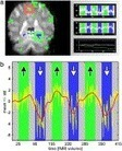 Real-time fMRI and its application to neurofeedback | NeuroImage | Contemplative Science | Scoop.it