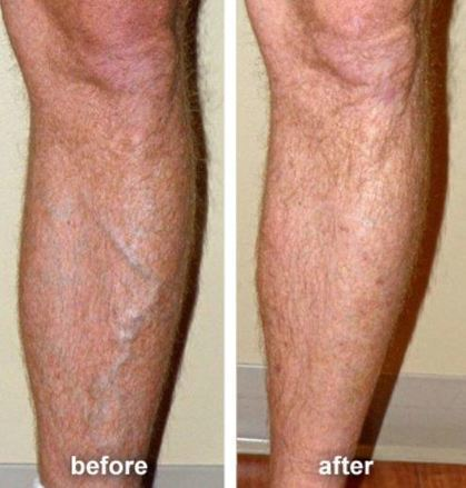 What to Expect After Varicose & Spider Vein Treatment | Via Vascular Blog | Scoop.it