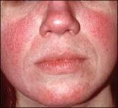 The 20 Best Home Remedies for Rosacea | Natural Alternative ... | SkinXO | Scoop.it
