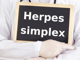 Essential Oils and the Herpes Virus | Natural Health & Healing | Scoop.it
