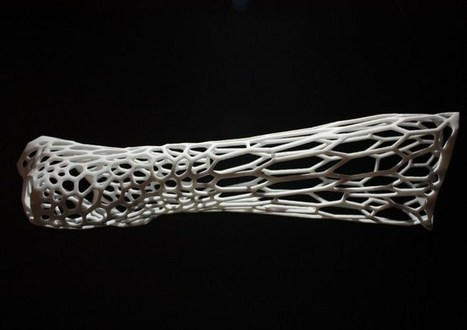 This beautiful 3D printed cast cuts down on the pain of a broken arm | Tinkering and Innovating in Education | Scoop.it