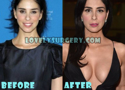 Sarah Silverman Plastic Surgery, Fact or Rumor? | Celebrity Plastic Surgery | Scoop.it