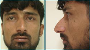 Rhinoplasty In Ahmedabad | Best Rhinoplasty Ahmedabad | Arthritis Treatment in Gujarat | Scoop.it