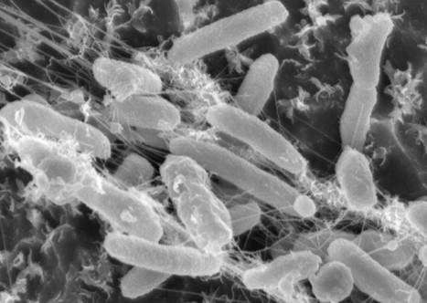 Des chercheurs découvrent une bactérie mangeuse de plastique, un nouvel espoir contre la pollution ? | CD2E | Scoop.it