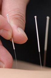 News - Acupuncture Cuts Lower Back Pain | fibromyalgia | Scoop.it