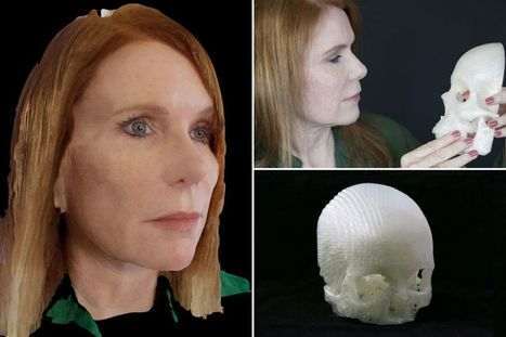 Dedicated husband saves his wife's eyesight by 3D printing her tumour | Top CAD Experts updates | Scoop.it