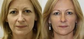 Reasonable Cost Of Juvederm Helps To Win Wrinkle Wars   Cosmetic products   Scoop.it