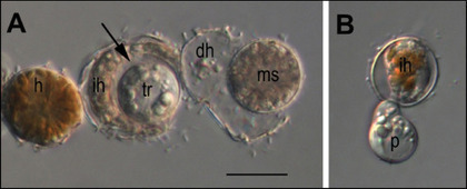 Ecological impacts of parasitic chytrids, syndiniales and perkinsids on populations of marine photosynthetic dinoflagellates | Protist evolution and biology | Scoop.it