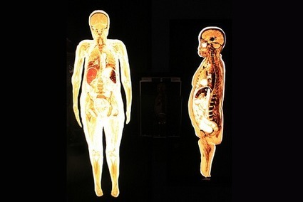 New Understanding of #Obesity as a Systemic #Disease - ConscienHealth | Weight Loss News | Scoop.it