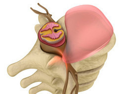 Herniated Disc | Treatment Options & Information | Pain management queens New york | Scoop.it