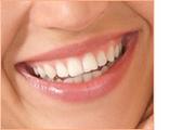 Dubai Hollywood Smile | The Dental House | SEO, Social Media, Reputation management, Web Development | Scoop.it