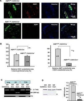 Novel Endothelial Cell-Specific AQP1 Knockout Mice Confirm the Crucial Role of Endothelial AQP1 in Ultrafiltration during Peritoneal Dialysis | Peritoneal dialysis | Scoop.it