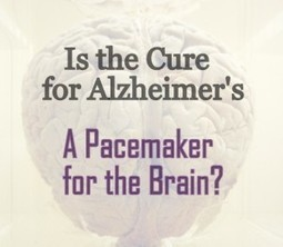 Is Cure for Alzheimer's a Computer for the Brain - Alzheimers Support | Alzheimer's Support | Scoop.it