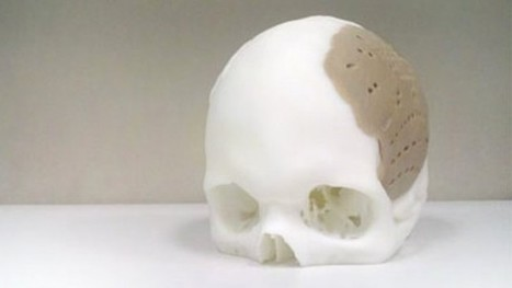 Portion of Man's Skull Replaced Using 3D Printing | TechnoBuffalo | ARCHIresource | Scoop.it