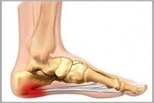Plantar Fasciitis In India | Frozen Shoulder In India |Gujarat | Ahmedabad | Scoop.it