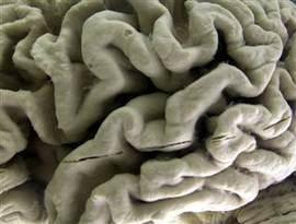 Speaking a second language delays dementias, even in the illiterate ... | Culture | Scoop.it