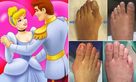 The rise of foot-altering 'Cinderella surgery'   Naturopathy   Scoop.it