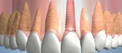 CIENTÍFICOS DE LA UJI CREAN UN NUEVO MATERIAL BIODEGRADABLE PARA LOS IMPLANTES DENTALES | hoycomentamos.com | Salud dental | Scoop.it