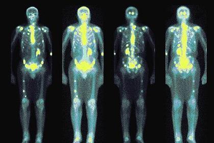 Métastases : une protéine ouvre de nouvelles perspectives | Portail de veille st2s | Scoop.it