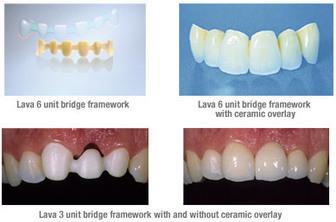 Dental Bridge   Adam Scott   Scoop.it